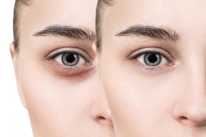 Coffee Benefit #5: Dark Circles and Puffy Eyes Reduction